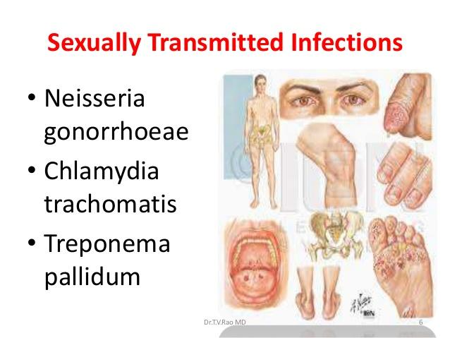 sexually transmitted dse Dse disease surveillance and epidemiology  sth soil-transmitted helminthiasis sti sexually transmitted infection tag technical advisory group tb tuberculosis.