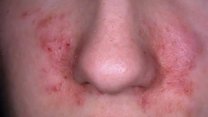 All About Dermatitis