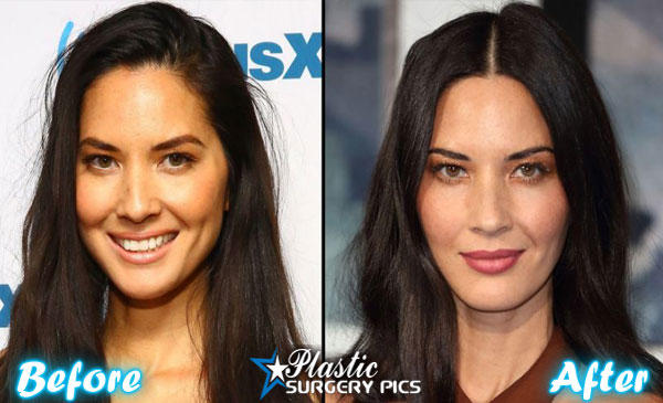 Olivia Munn's Ever Changing Face