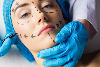 What it's Like Getting Facial Feminization Surgery