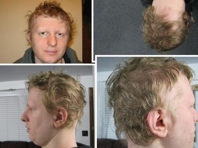 How I Cured My Hair Loss With Just a Tiny Pill (Before and After Pics Included)