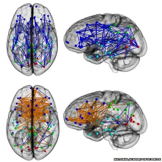 Up: male, down: female. Hormones influence brain structure.