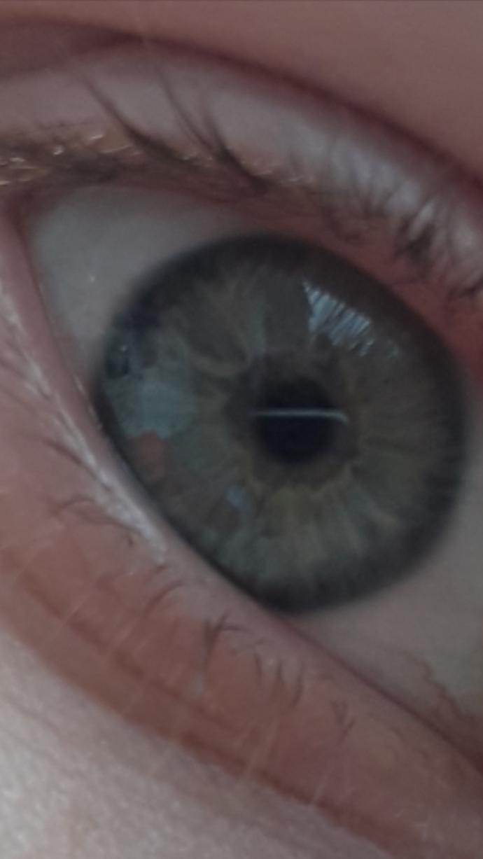 (This is my brother's eye)