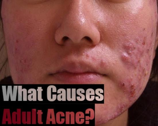 Causes and treatment of adult acne