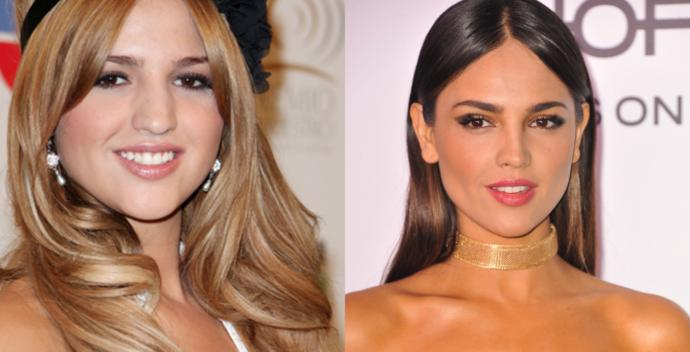Successful Plastic Surgeries On Women