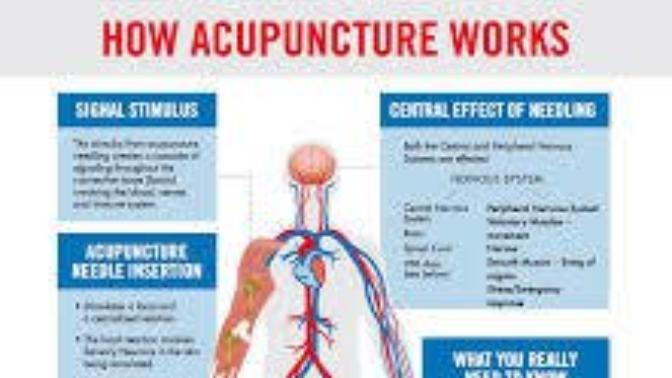 Monkeynutts discusses the merits of Acupuncture