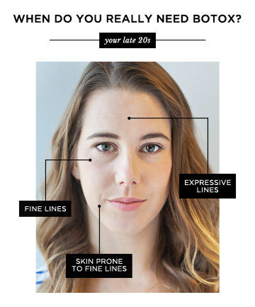 Botox to prevent lines?  Not so much.