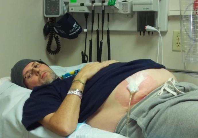 Pre-transplant having fluid drained