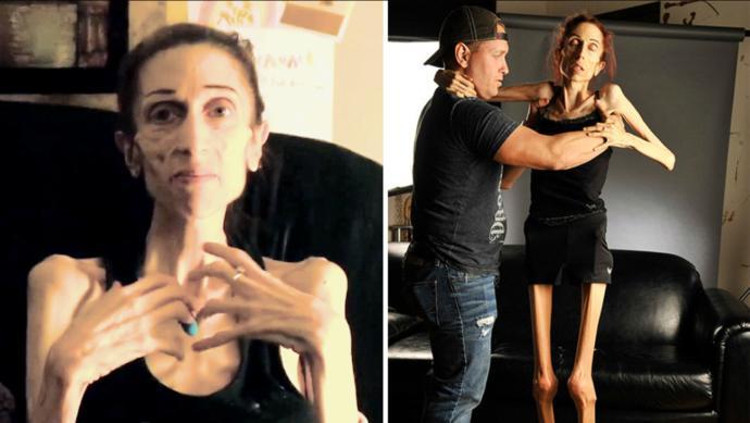 Rachael Farrokh, California actor, severe anorexic.