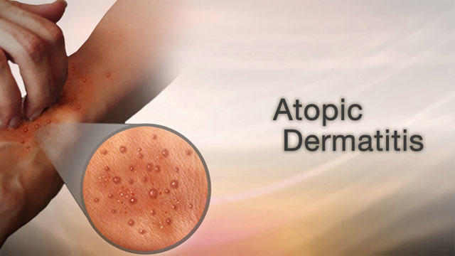 Lets talk about Atopic Dermatitis!