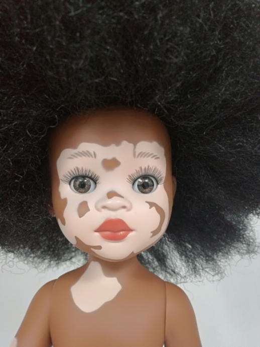 A doll with vitiligo