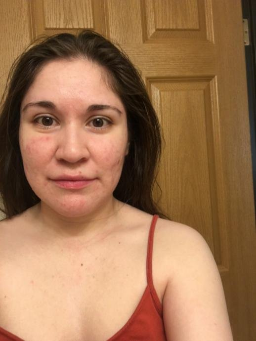 au naturale with acne/scars, big nose, wide jaw, asymmetrical face and baggy eye.