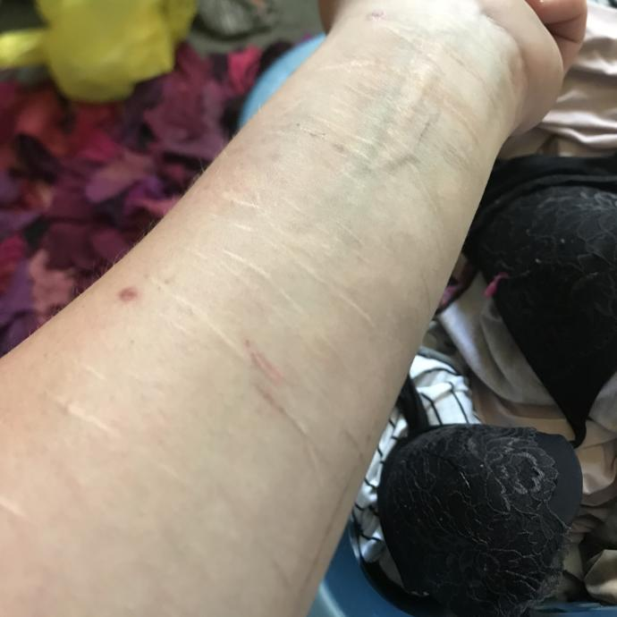 Some of my scars. It makes me happy to not add any more for over a year!