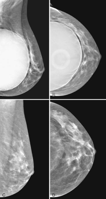My experience getting a mammogram and what you can do to get the most out of yours!