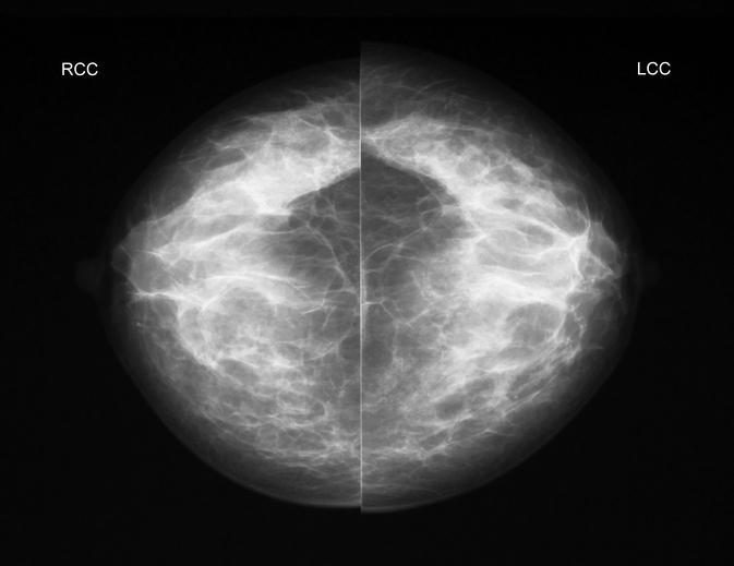 CC view X-rays