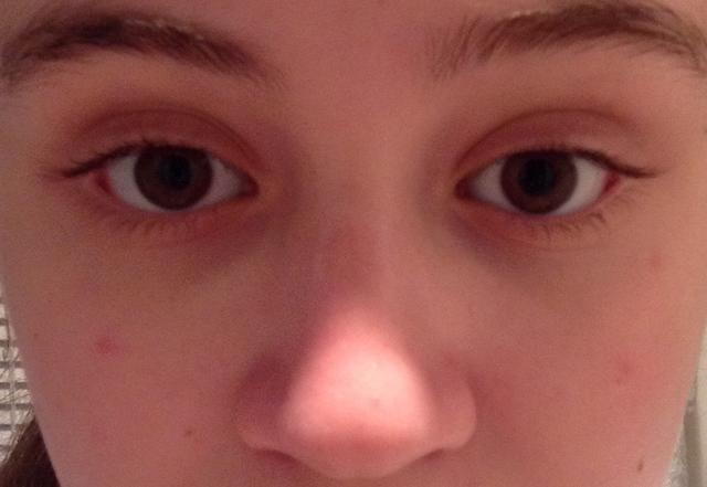 Do I have a lazy eye? Or are they more just off? Please help?