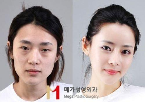 Plastic surgeries in Korea > why do they make themselves look completely unrecognizable?