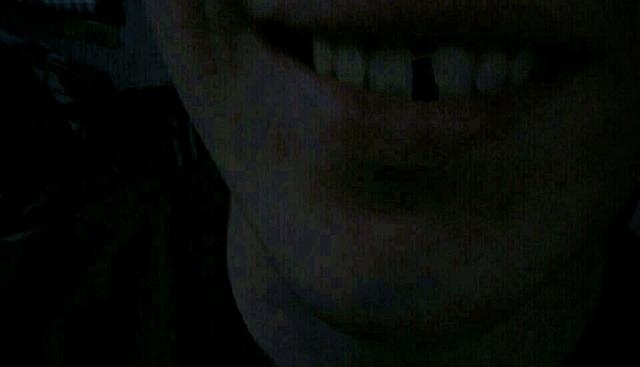 Girls, should l get the gap in my teeth fixed?