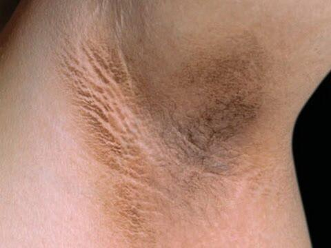 Is dark stained underarms a deal breaker for anyone else or am I just being shallow?