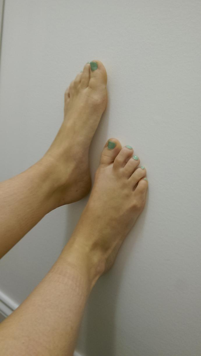 Do I have ugly feet?