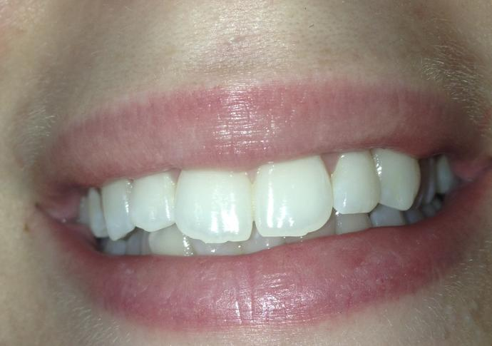 Do you think I need braces or any other type of dentistry work?