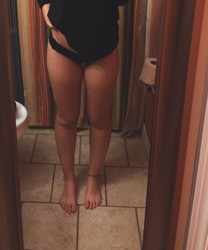 Help! Whats wrong with my legs?