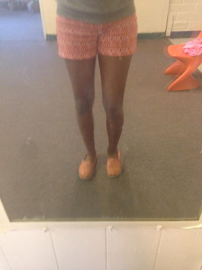 Why are people staring at my legs ?