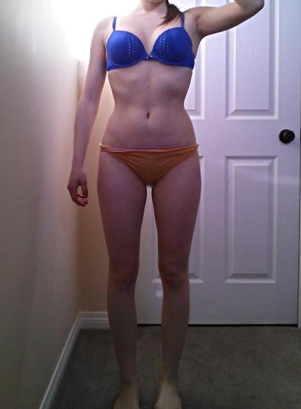 Am I obese? filllerr?