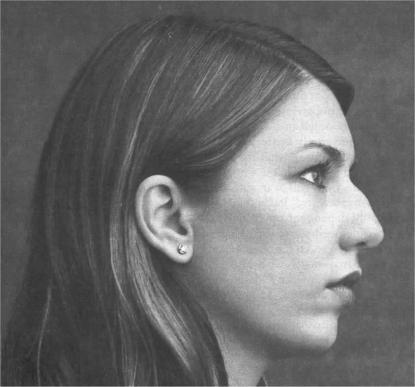 Are girls with big noses attractive?