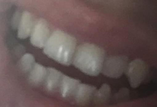 are my teeth ugly?