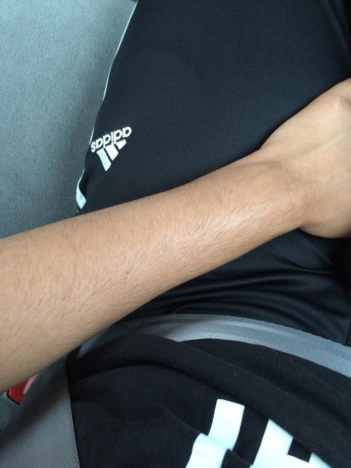Are my arms hairy?