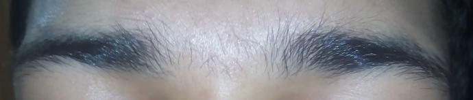 I have hair between my eyebrows, is this normal?