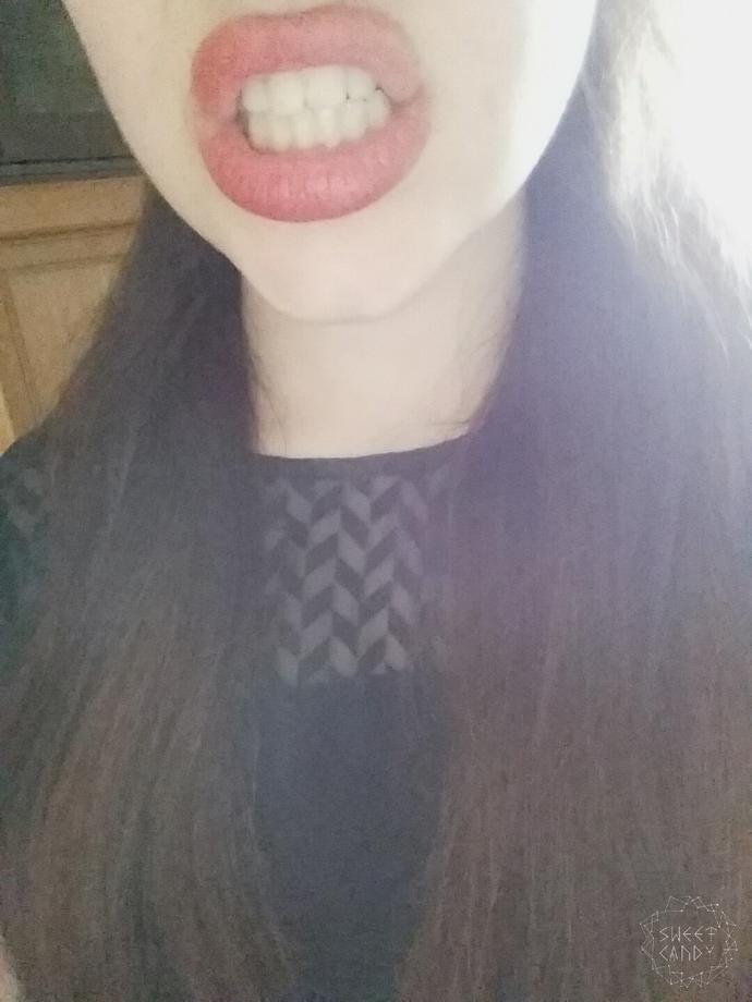 Do you think I need braces?