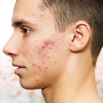 Does facial acne bother guys?