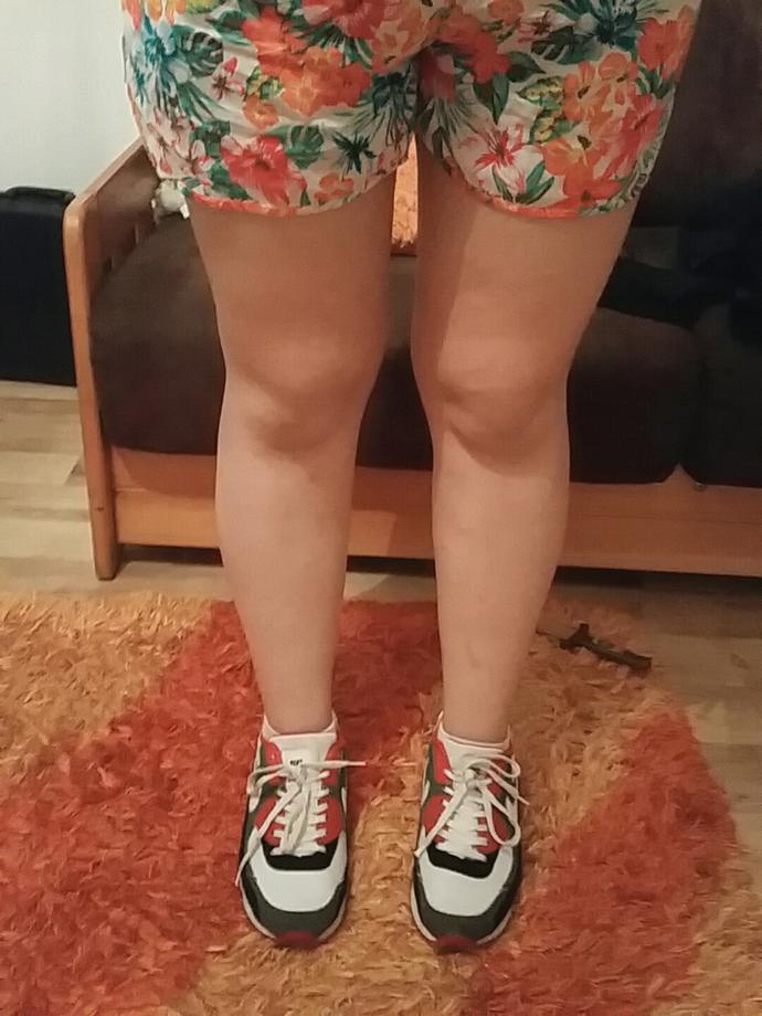 Are my legs really that ugly?