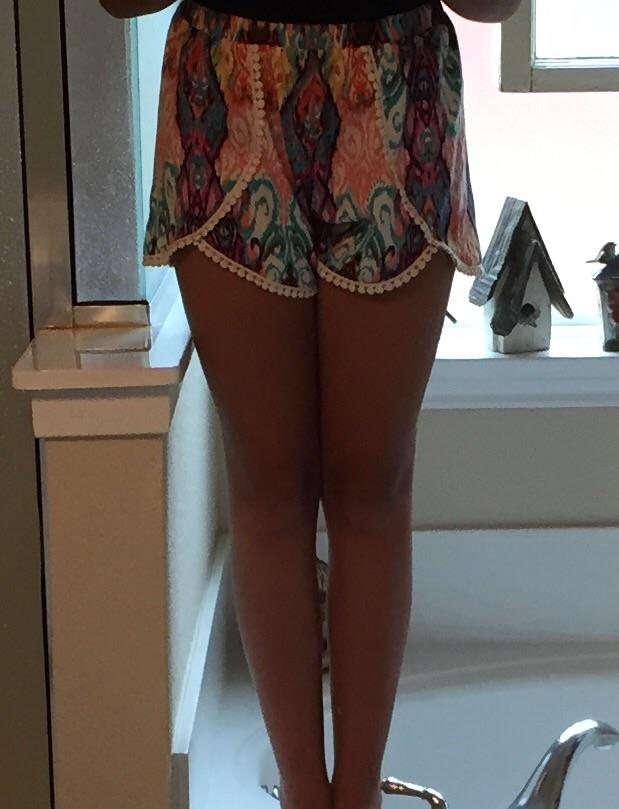 Girls, would you consider my legs small, normal, or chubby?