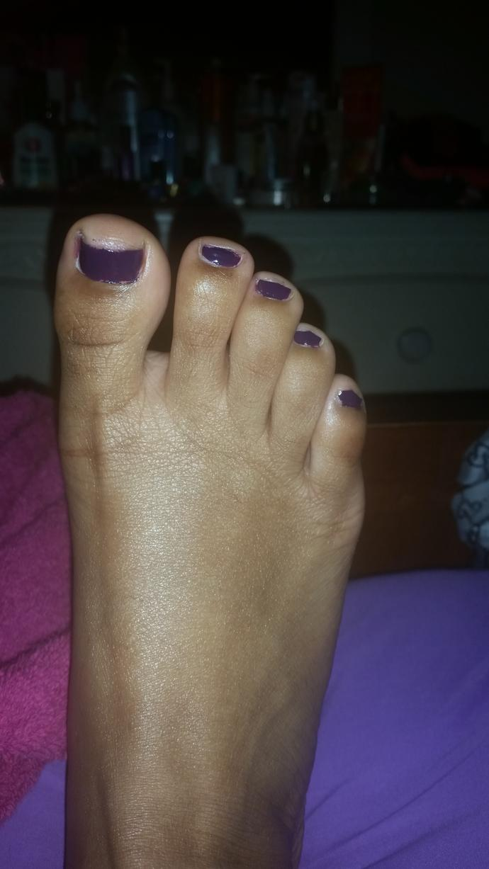 Does this color look good on my toes (Dont mind my ugly toes :x)?