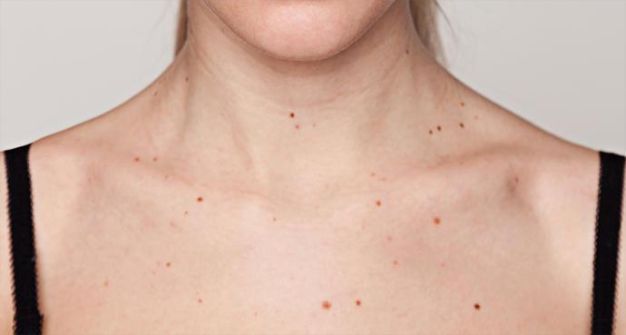 Guys, do small skin moles bother you?