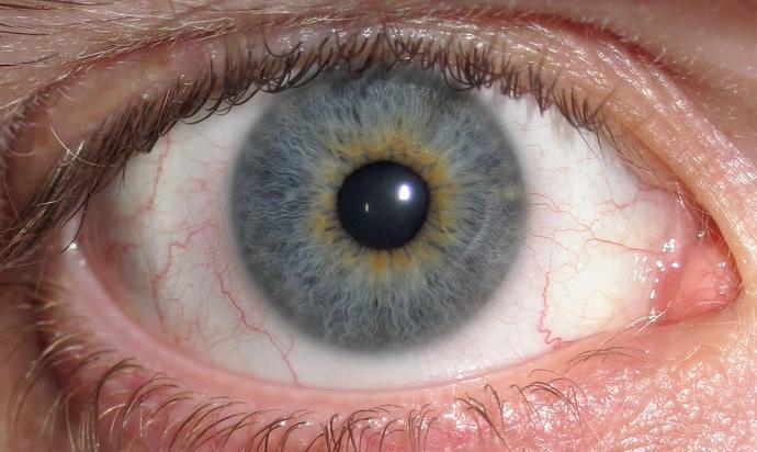 Do you have heterochromia?