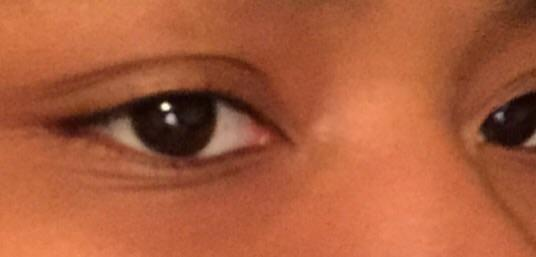 what eye shape is this?