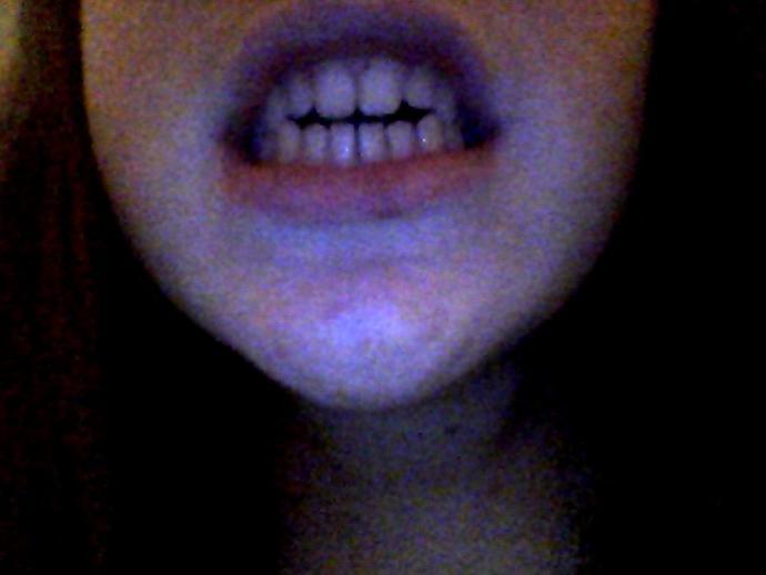 How do my teeth look?