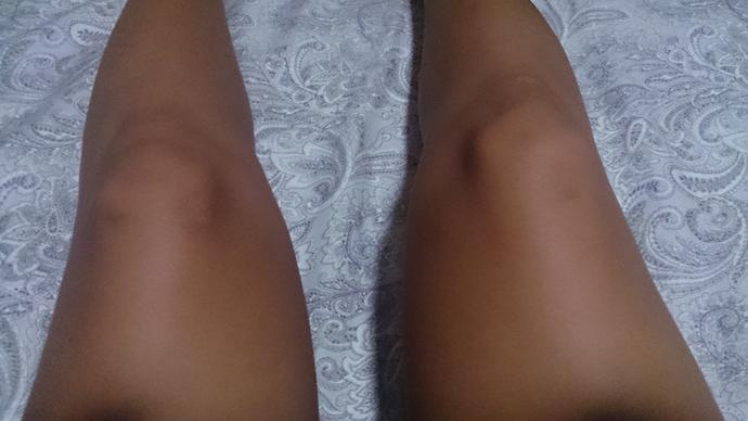 How unattractive are legs if they have some scars?