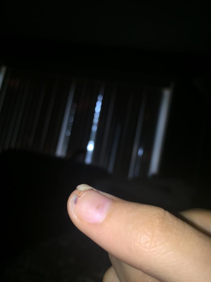 I sliced my thumb nail off don't know what to do?