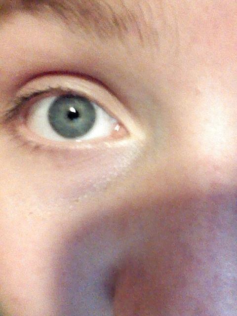 Do most eyes do this?