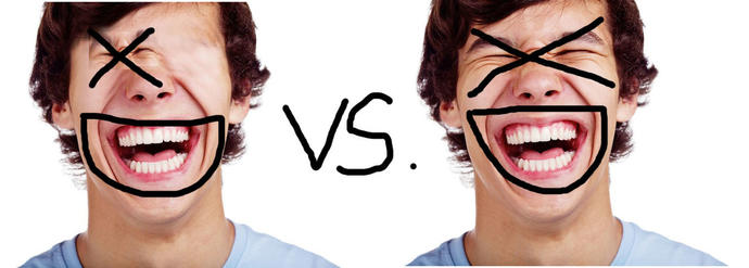 XD vs. xD - Which one is correct?