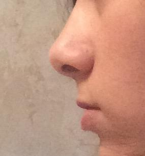 Does my nose look that horrible?