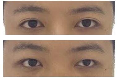 Monolids or double eyelids?