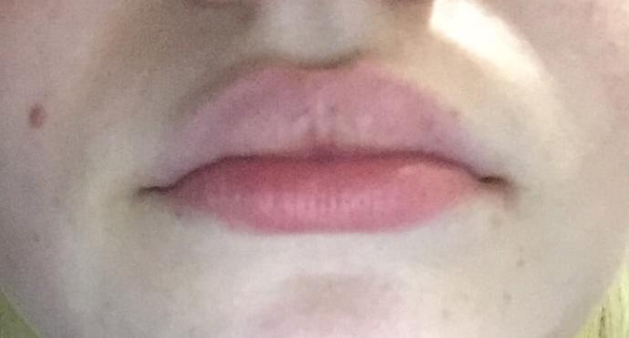Why do guys always say I have nice lips?