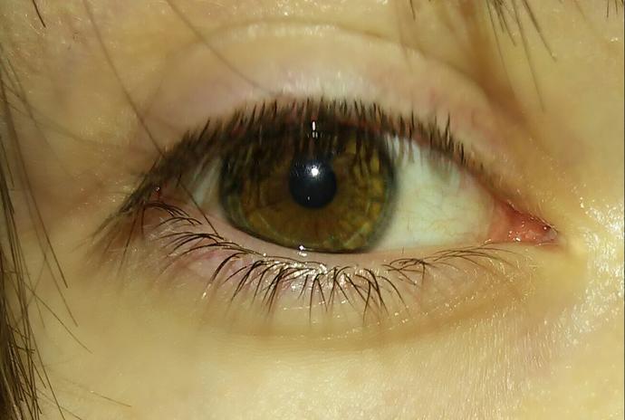 Why my eyes looks weird like that?