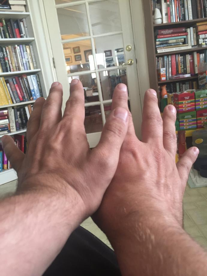 GAGers, its time for you all to rate MY HANDS?